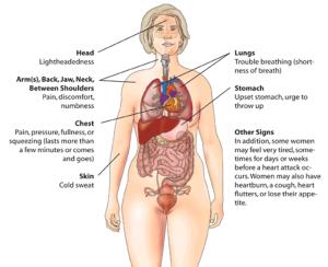 Įspėjamieji širdies smūgio požymiai (wikipedia.org nuotr.)