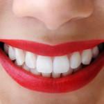 Kodėl negalima spręsti, ar dantys sveiki, pagal jų spalvą: balti dantys – tik švarūs