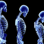 Įspėjamųjų osteoporozės simptomų nebūna – pasitikrinkite jau dabar