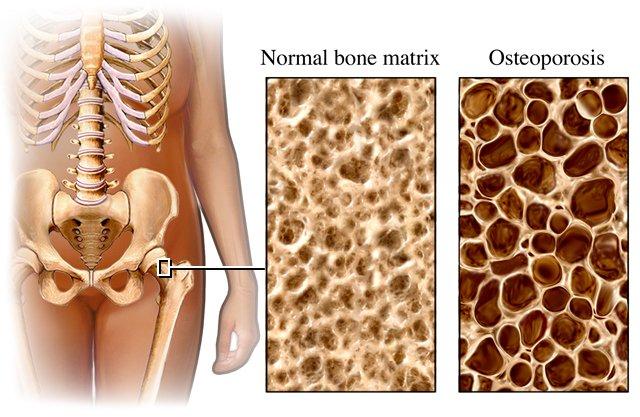Taip atrodo osteoporozės pažeisti, išretėję kaulai (medimoon.com nuotr.)