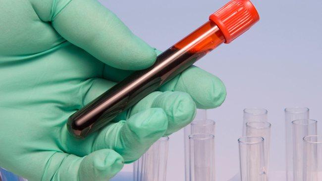 Kraujo tyrimas limfomos (ypač neišplitusios) atveju dažniausiai yra normalus arba jame nustatomi tik nespecifiniai ligai pokyčiai