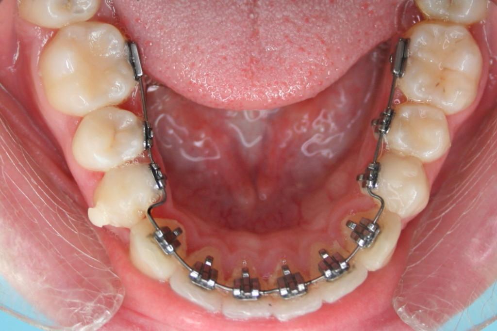 Liežuviniai breketai – klijuojami ant vidinės dantų pusės, yra brangesni nei kitos breketų rūšys (ortodontinis.lt nuotr.)