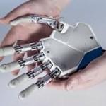 SAM finansuos vaikino bioninės rankos ir protezavimo kainą