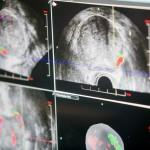 Kasmet Lietuvoje nustatoma apie 3 tūkst. naujų prostatos vėžio atvejų