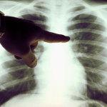 Netikėti plaučių vėžio simptomai: sustingusi ranka, skausmas petyje, ištinę rankų pirštai…