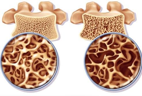 Osteoporozės paveikti kaulai (dešinėje). (wikipedia.org nuotr.)