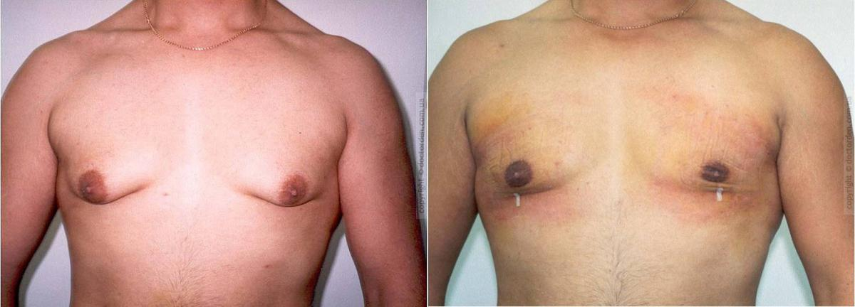 Prieš ir po ginekomastijos operacijos. (muska-posla.com nuotr.)