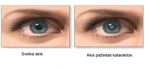 Katarakta – tai akies lęšiuko drumstėjimas, pasireiškiantis matymo pablogėjimu viena ar abiem akimis.