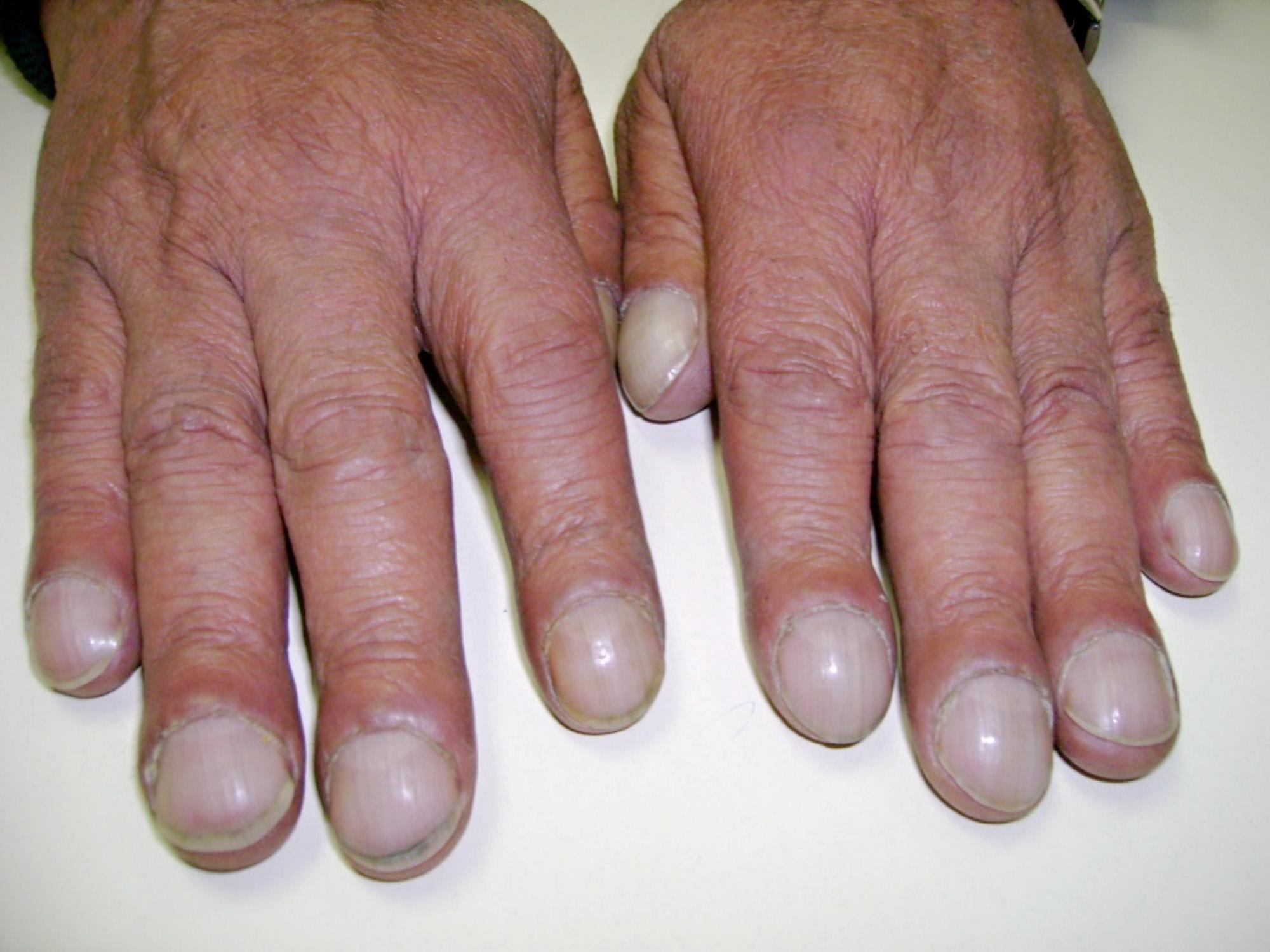 Kitas netradicinis plaučių vėžio simptomas – suapvalėję, tarsi ištinę rankų pirštų galai. (wikipedia.org nuotr.)
