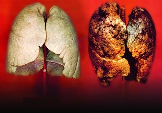 Sveiki (kairėje) ir rūkančio (dešinėje) žmogaus plaučiai. (Shutterstock.com nuotr.)