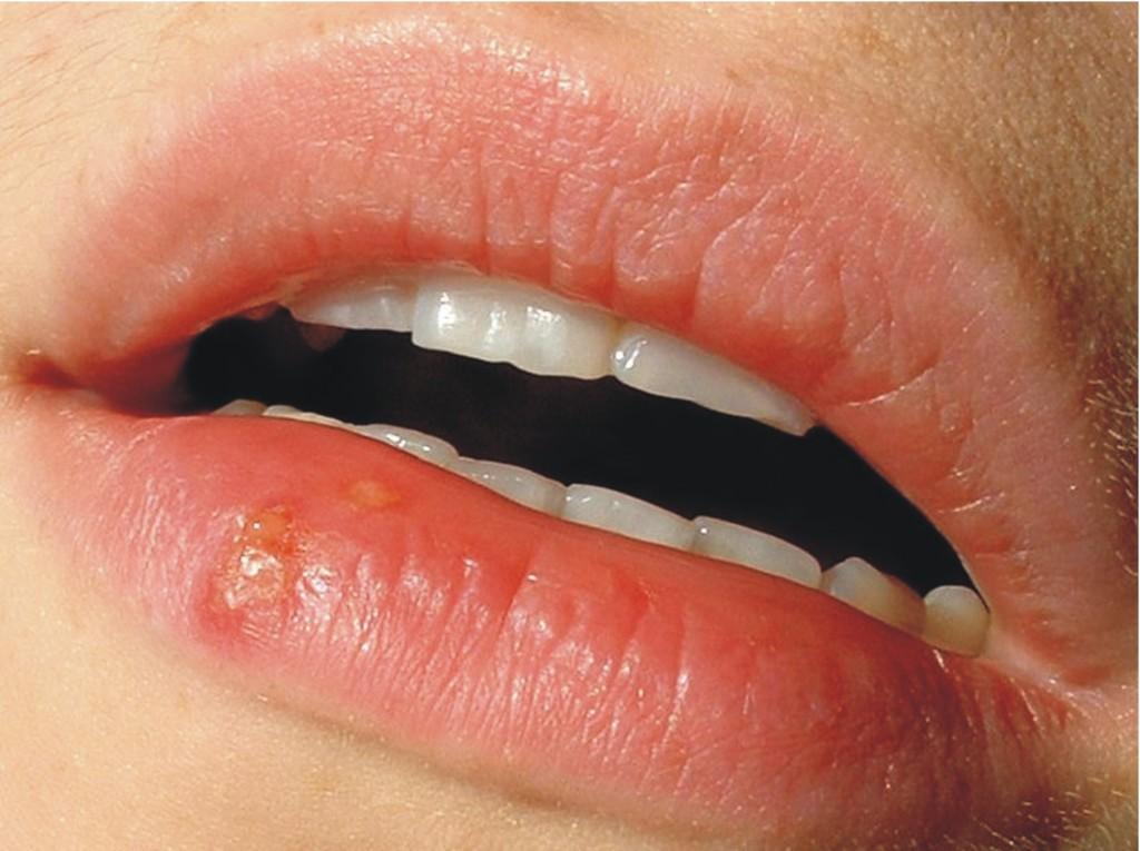 Dažna ŽPV forma - lūpų puslelinė (sos03.lt nuotr.)