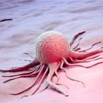 Nuomonė: žmonės senatvėje suserga vėžiu tik dėl to, kad jų nebeužpuola kitos ligos