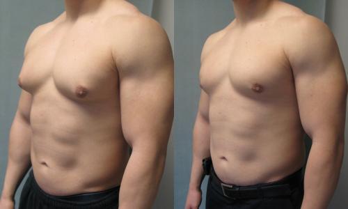 Net 40 proc. vyrų kenčia nuo šio sutrikimo. Nuotraukoje - prieš ir po ginekomastijos operacijos (muska-posla.com nuotr.)