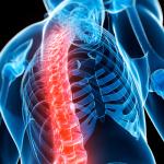 Tarptautinė osteoporozės diena: milijonai lūžių kasmet, arba kodėl papildai su kalciu nėra efektyvi profilaktikos priemonė