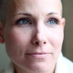 Pusės mirčių nuo vėžio Europoje būtų išvengta, jei kiekvienas laikytųsi šių rekomendacijų