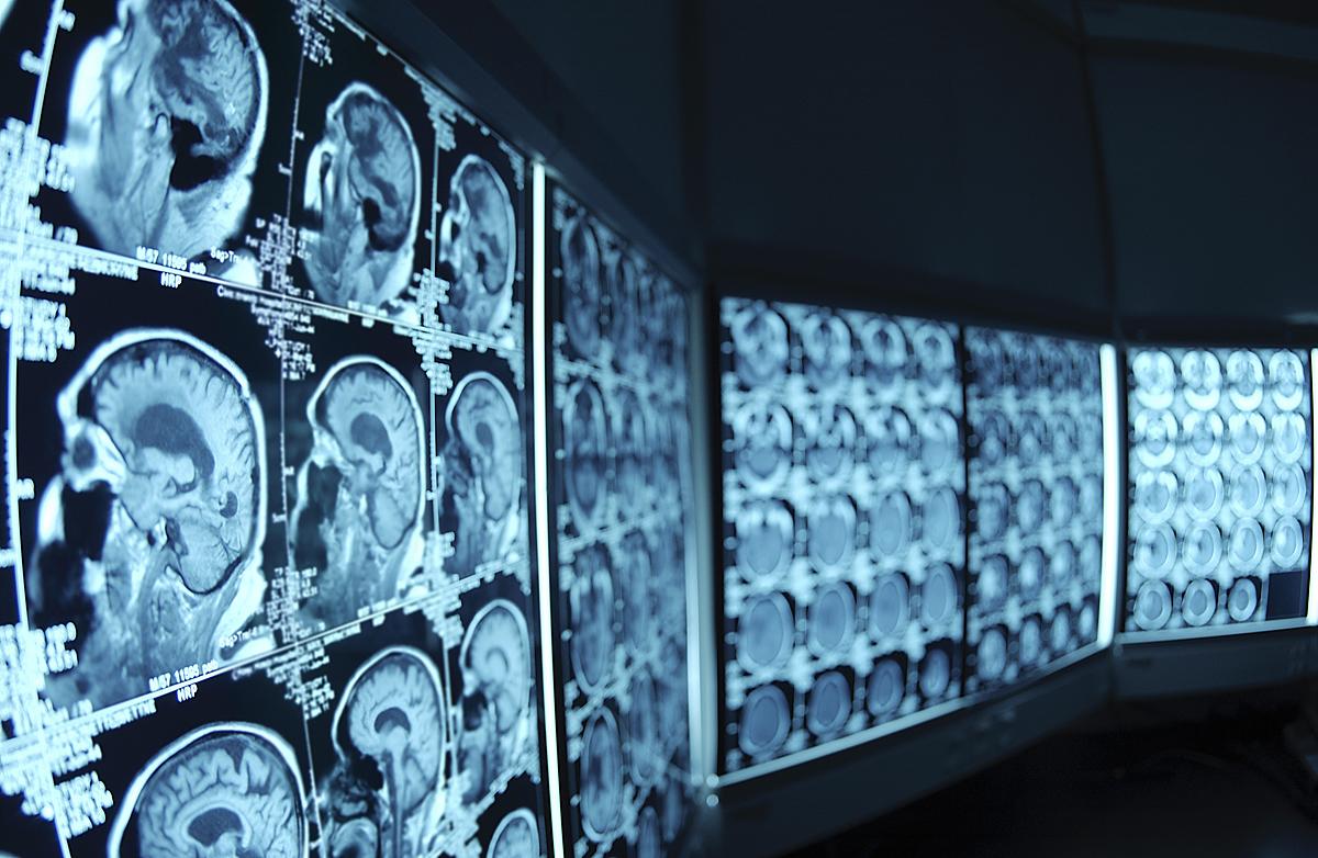 Lapkričio 8-oji pasirinkta todėl, kad šią dieną 1895 metais Wilhelmas Konradas Rentgentas atrado naują spindulių rūšį, vėliau pavadintą rentgeno spinduliais. (wikimedia.org nuotr.)