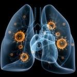Gydydamiesi plaučių uždegimą lietuviai pernelyg pasitiki antibiotikais