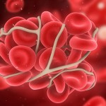 Giliųjų venų trombozė: nauji gydymo principai Lietuvoje