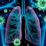 Nuo peršalimo iki… Patarimai, gydant ūminį bronchitą