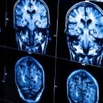 Įdomybės: brito smegenyse apsigyveno kaspiniuotis