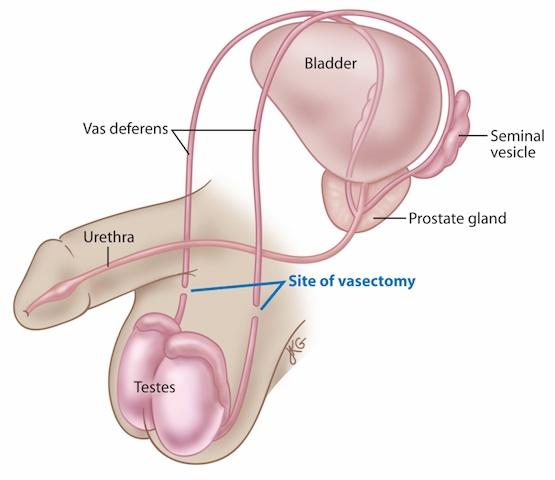 Vazektomiją gali atlikti urologas savo kabinete. Ši operacija užtrunka 20-30 min., ne ilgiau.