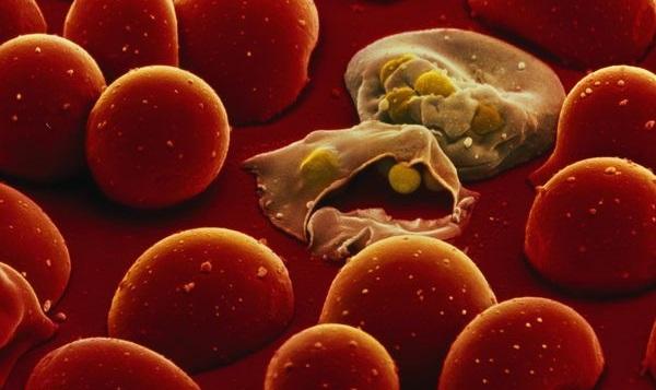 Maliarija užkrėsta kraujo ląstelė. (nationalgeographic.com nuotr.)