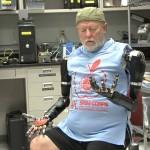 Pirmą kartą istorijoje: vyrui pritaikyti abiejų rankų mintimis valdomi protezai