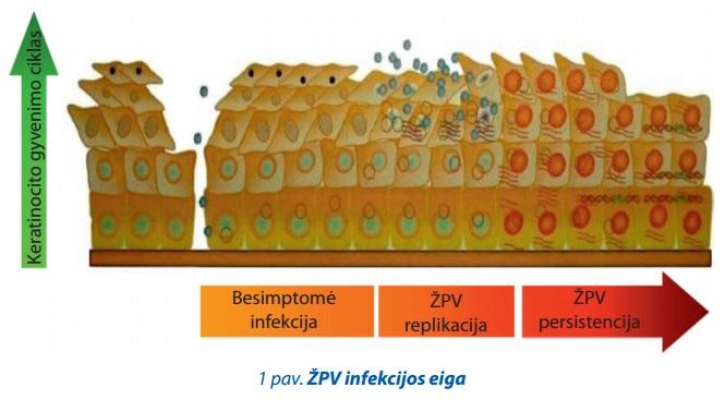 infekcijos eiga