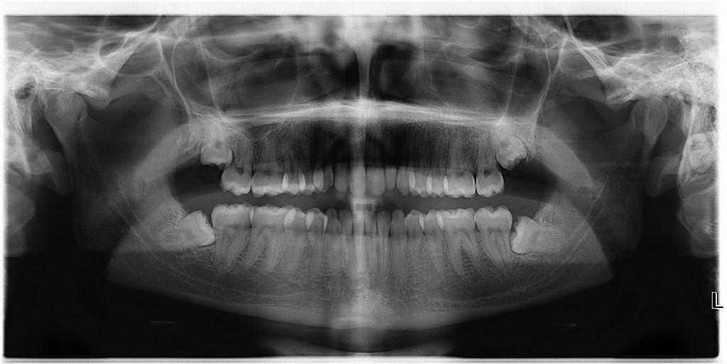 Pasižiūrėjęs rentgeno nuotrauką chirurgas turi nuspręsti, šalinti visą ar pusę danties. (wikipedia.org nuotr.)