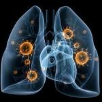 Lėtinė obstrukcinė plaučių liga: kodėl ja serga vis daugiau lietuvių?