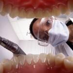 Kada reikia pašalinti protinius dantis?