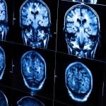 Vilniaus neurochirurgai atliko unikalią smegenų skysčio drenavimo operacija