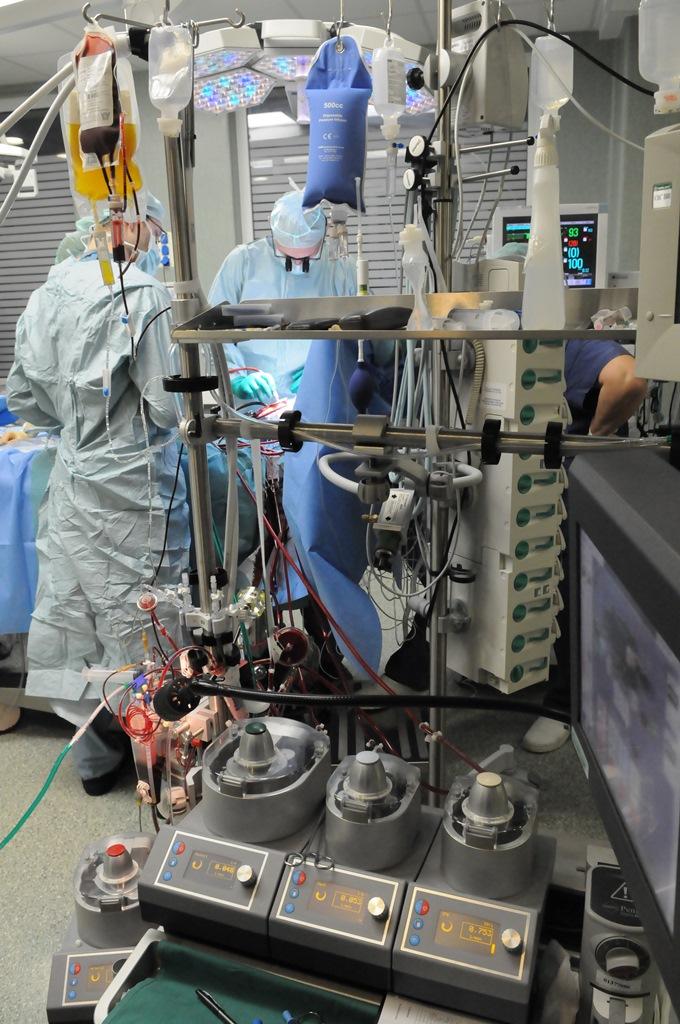 Dirbtinės kraujotakos aparatūra. (P. Katausko nuotr.)