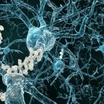 Alzheimerio liga gali prasidėti ir dvidešimties?