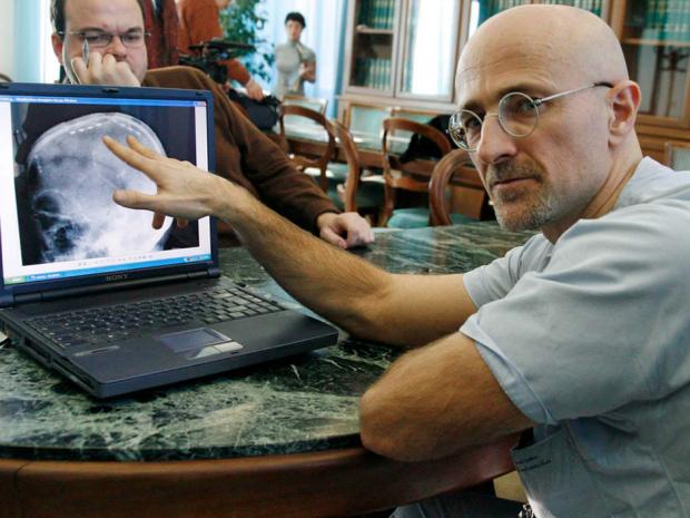 Neurochirurgas Sergio Canavero (dailymail.co.uk nuotr.)