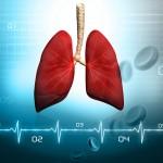 Plaučių tuberkuliozė – dažniausia AIDS indikacinė liga