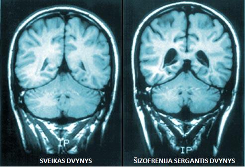 Sveiko ir šizofrenija sergančio dvynio smegenys. Sergančio dvynio smegenų skilveliai išsiplėtę, smegenų tūris yra mažesnis. (webmd.com nuotr.)