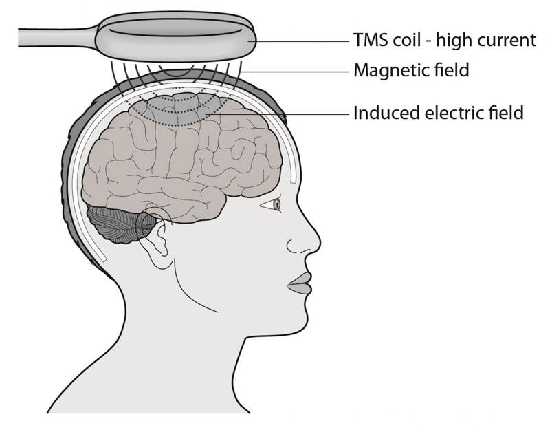TMS veikimo principas. (nuffieldbioethics.org nuotr.)