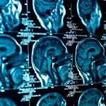 Išsėtinė sklerozė – jaunų moterų liga