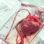Išskirtinė istorija: gyvenimas su donoro širdimi