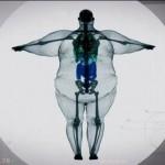Nutukimo priežastys ir būdai jį įveikti