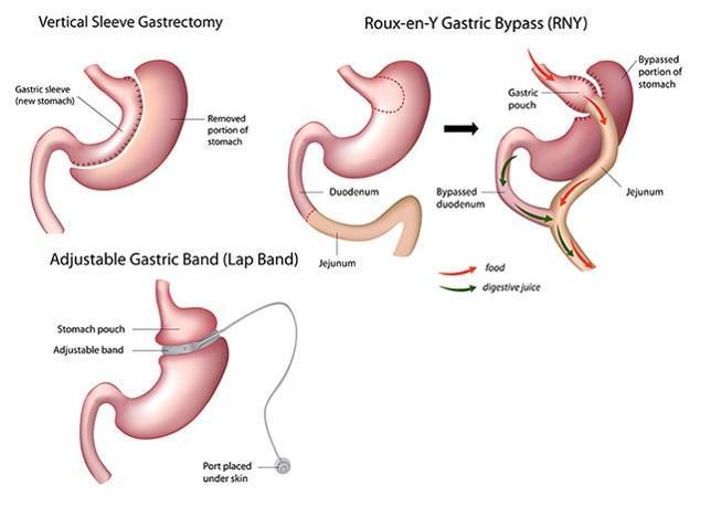 Bariatrinių operacijų tipai: 1. Skrandžio išilginio vamzdelio suformavimo operacija (Sleeve Gastrectomy); 2. Skrandžio apylankos operacija; 3. Skrandžio apjuosimo reguliuojama juosta operacija. (medscape.com nuotr.)