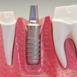 Ką reikia žinoti, prieš renkantis dantų implantus?