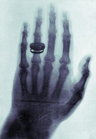 Pirmoji rentgeno nuotrauka (wikimedia.org )