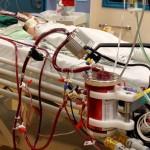 Iš mirties išplėšė jauną vyrą – padėjo EKMO sistema