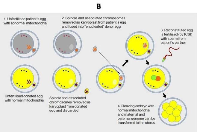 Pacientės DNR perkėlimas į donorinę kiaušialąstę iki apvaisinimo
