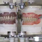 Laukiantys dantų protezavimo, pasitikrinkite pašto dėžutes!