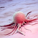 Pusės mirčių nuo vėžio Europoje gali būti išvengta