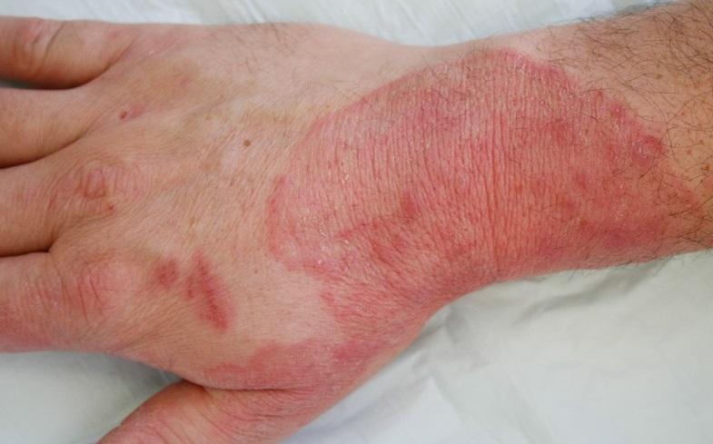 Dermatofitų sukeliama grybelinė odos infekcija (dermapics.com nuotr.)