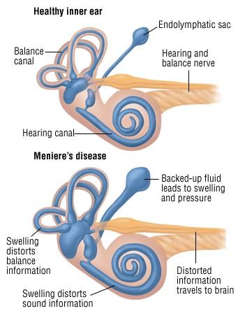 Sveiko ir Menjero liga sergančio žmogaus vidurinė ausis. Sergant Menjero liga vystosi plėvinio labirinto vandenė, tad sutrikdomos pusiausvyros ir klausos funkcijos.